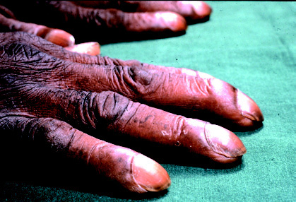 Clubbed Fingers image